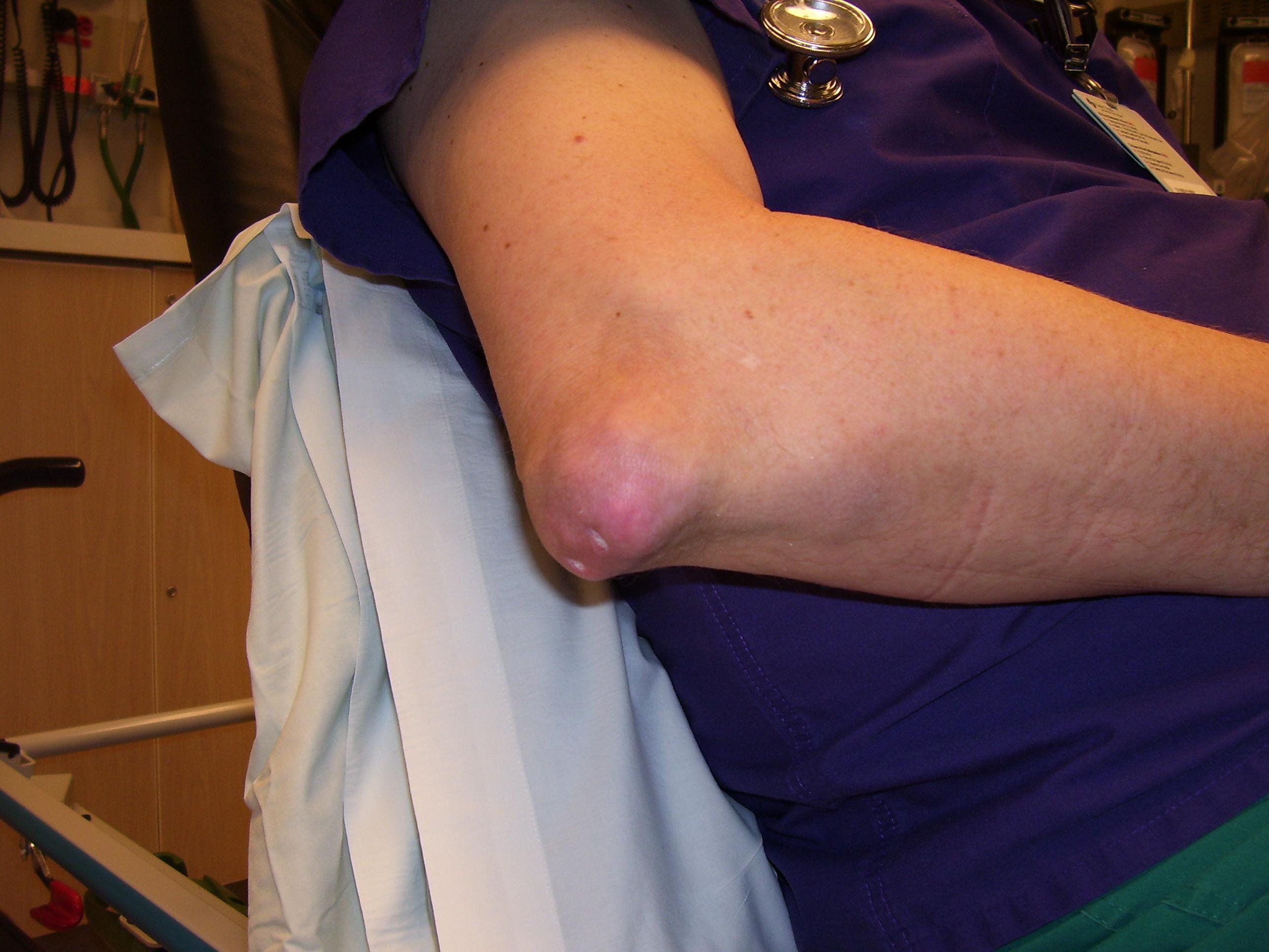 a lábujj ízületi gyulladásának tünetei az ízületek fájni kezdtek