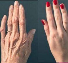 arthrosis kezelés dél-koreában mik az ízületi reuma tünetei és kezelése