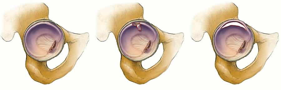 a térdízület artrózisa 1 fok