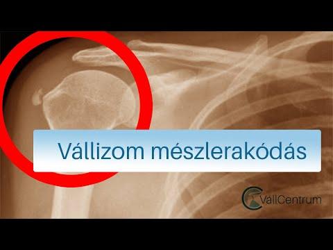 torna a vállízület fájdalma a csontritkulásban)