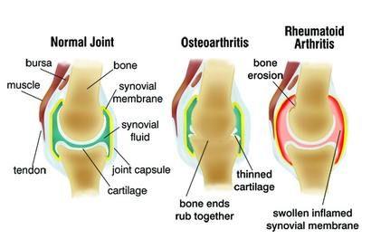 artrózis vagy ízületi gyulladás kezelése