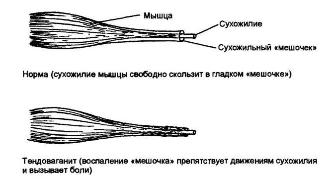 ízületi gyulladás 1 ujjkefe)