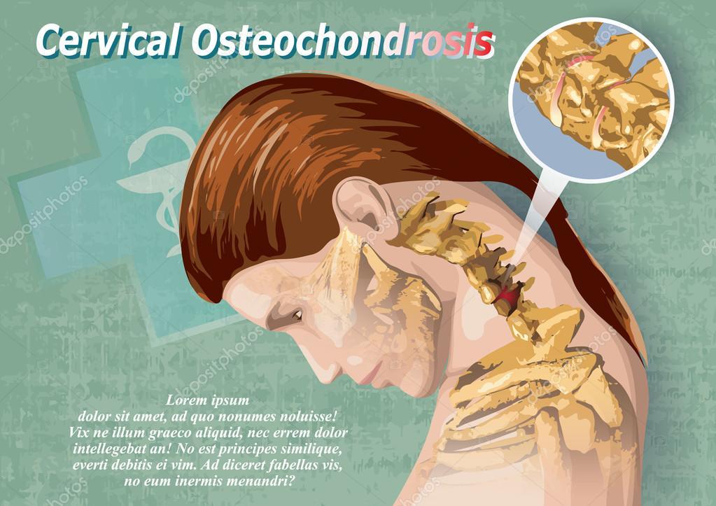Nyaki merevség & Nyaki osteochondrosis: okok – Symptoma