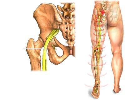 lyukasztó fájdalom a csípőízületben)
