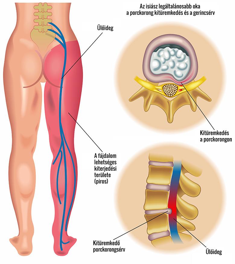 fájó gerinc és csípőízület
