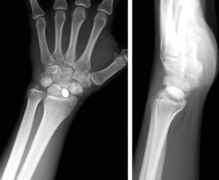 osteoarthritis a scaphoid scaphoidban)