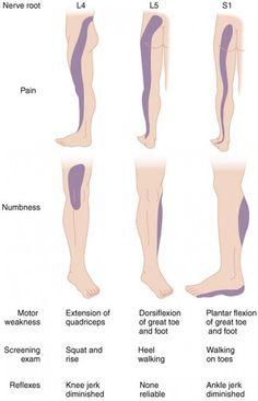 fájdalom a térdízületben hogyan kell kezelni a gyógyszert láncolt ízületi fájdalom