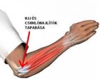 Sport közben sérült a könyök, a boka? Így segít a hialuronsav