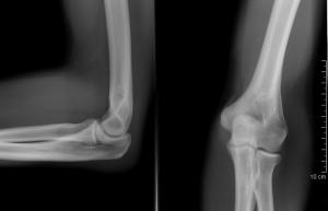 fájdalom a jobb oldali epicondylitis könyökében)