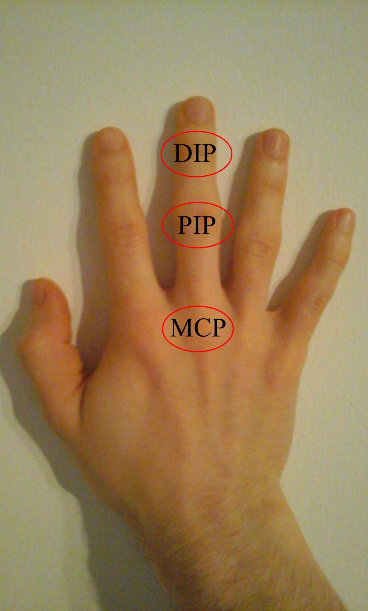 az ujjak ízületeinek fertőző ízületi gyulladása)