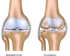 Mi a térd osteoarthritisének deformálása: a DOA 1 és 2 fokos diagnózis