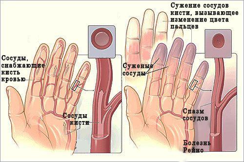 fájdalom a bal kéz hüvelykujjának ízületében váll fájdalom injekció