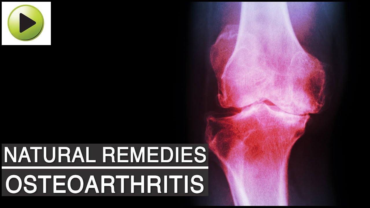 ayurveda artrosis kezelése