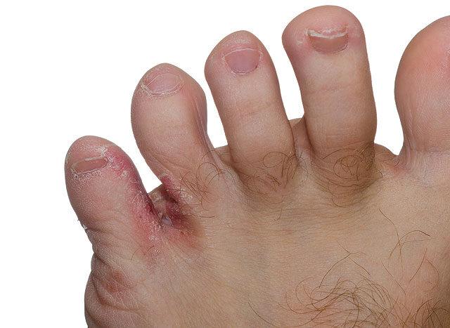 a lábujjak fájnak