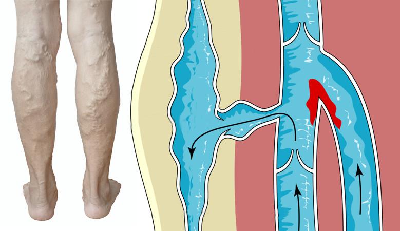 amit nem lehet enni a vállízület artrózisával lüktető fájdalom a lábak ízületeiben