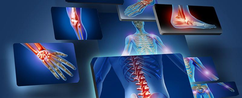 lábízület sérülések csípőízület ligamentumainak sérülése