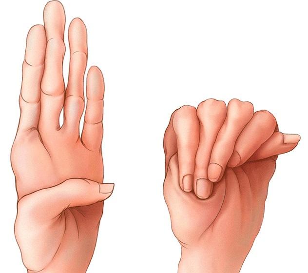 kötőszöveti diszplázia kezelési rendjei enyhítse a csípőízület súlyos fájdalmát