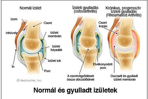 Térdízületi gyulladás kezelése lökéshullámmal