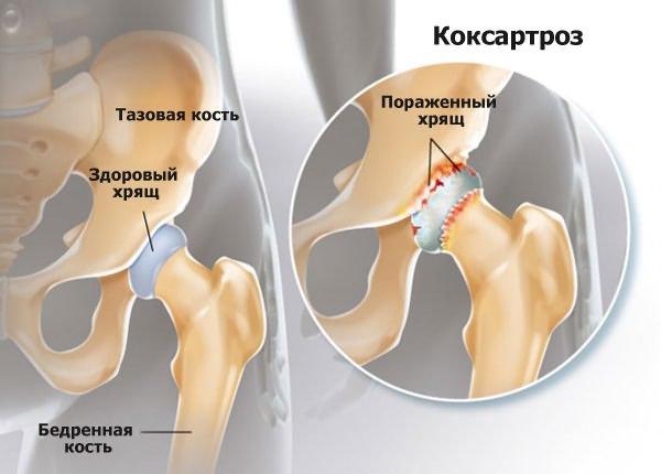 a csípőízületek deformáló osteoarthrosisának 3 fokos kezelése)