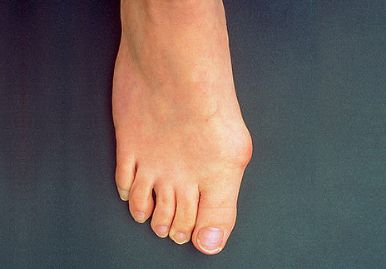 fáj a kis láb ízülete