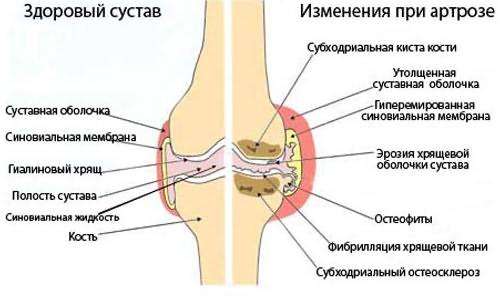 a térd deformáló artrózisának stádiumai