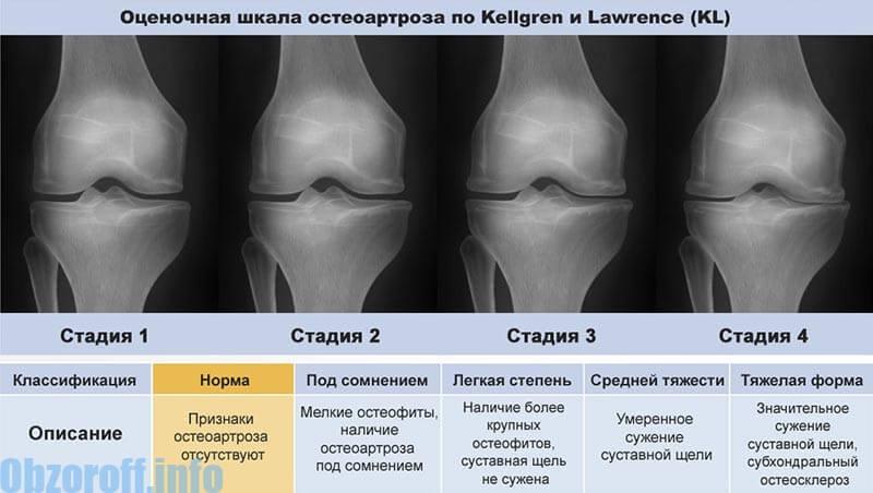 a szubtalaris ízület posztraumás artrózisa