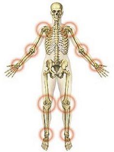 ízületi fájdalom és gyulladás hogyan kezelhető a térdízület kezelésének deformáló artrózisának jelei