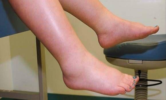 segít az ízületi gyulladásokban