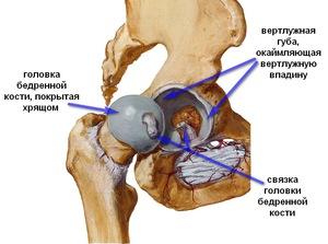 a csípőízület deformáló artrózisának kezdeti megnyilvánulásai