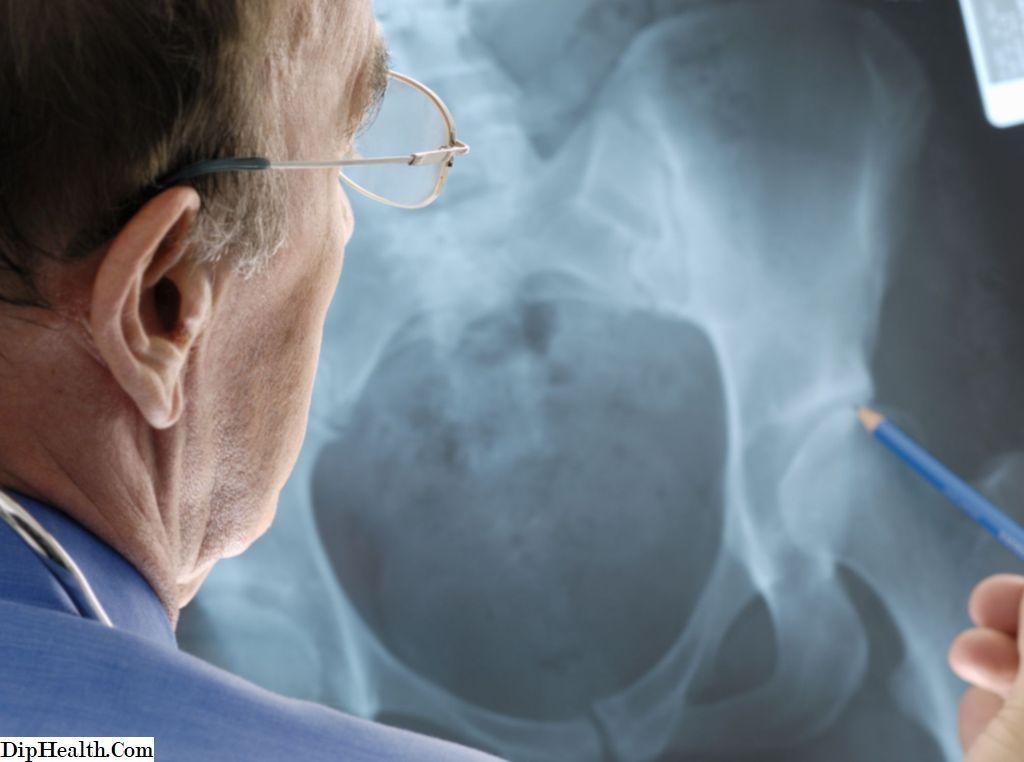 súlyos fájdalom a csípőpótló műtét után kéz-ízületi gyulladáskezelési rendszer