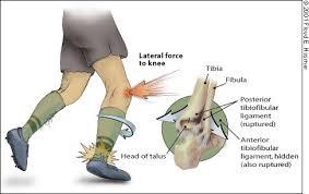 kötések törése a bokaízület kezelésénél