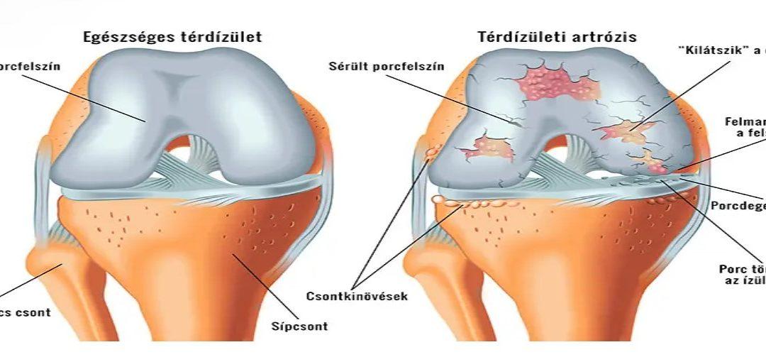 a térd artrózisának kezelése vízzel)
