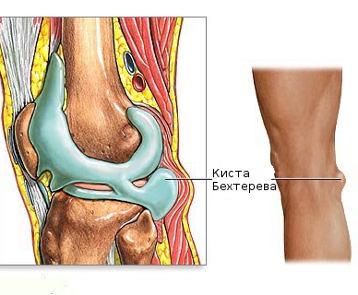 térdízület gyulladás szinoviális membránja)