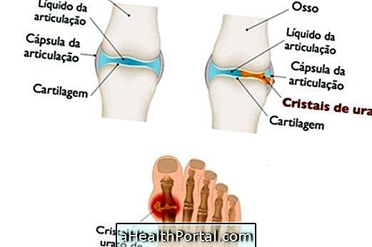 Melyek a lábujjak deformációja és hogyan kell azokat kijavítani? - Diszplázia
