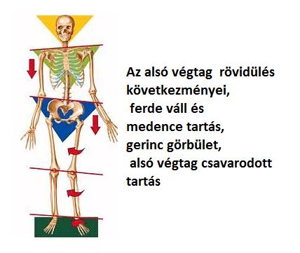 fájdalom a csípőízület protezálása után)
