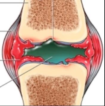 az ízület alsó lábának ízületi gyulladása