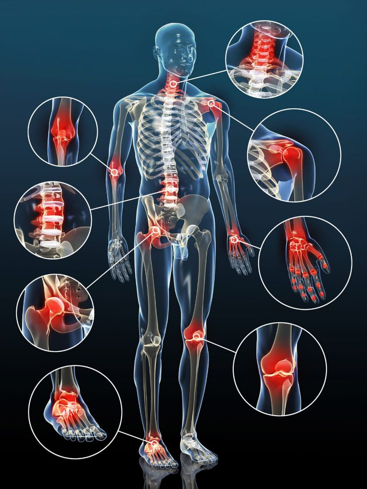 osteochondrozis artritisz kezelése