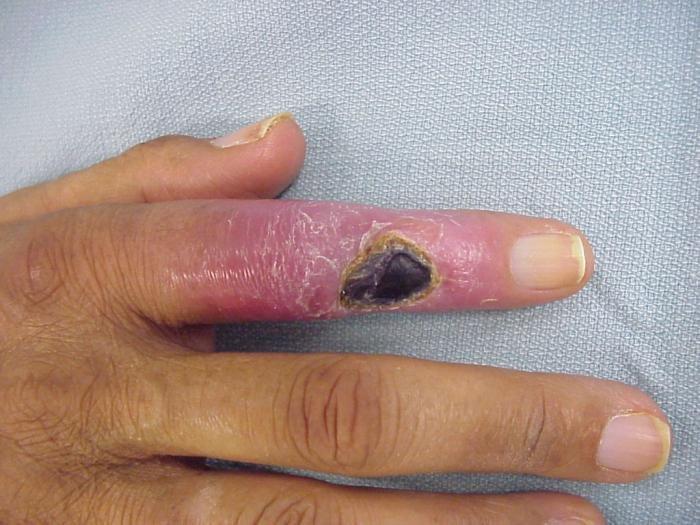 fájdalom a bal kéz mutatóujja ízületében)