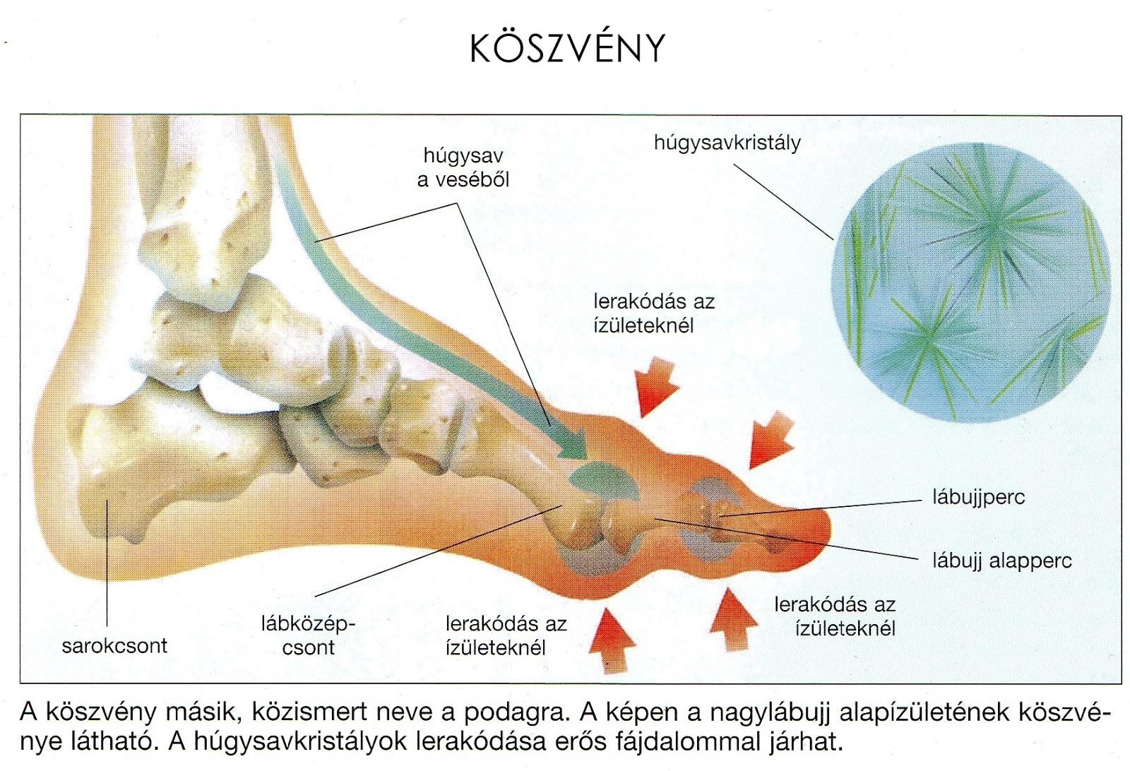 tentórium az artrózis kezelésében ezoterika, miért fáj az ízületek