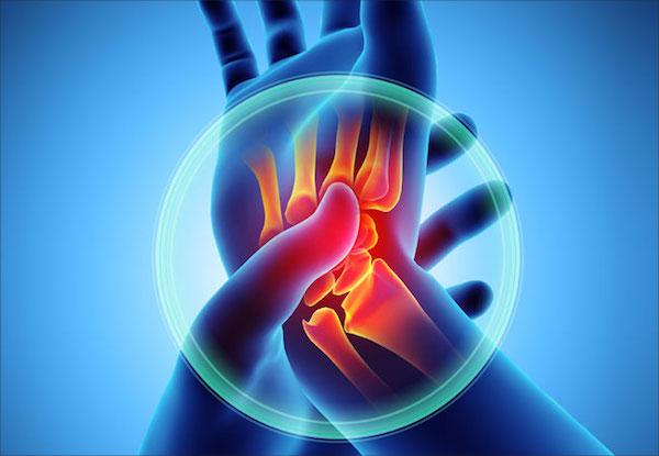 Enyhe-középsúlyos ízületi gyulladás és fájdalom