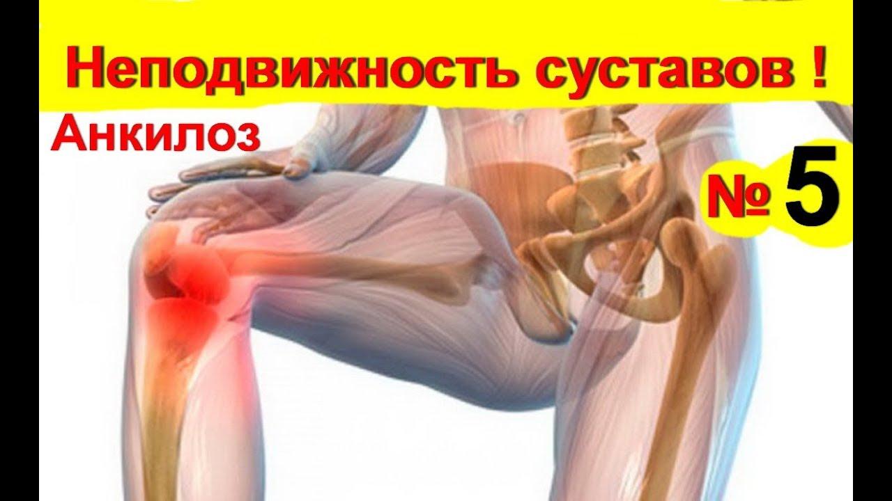 deformáló artrózis a bokaízület kezelésében