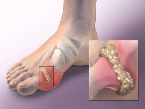 Ízületi gyulladás - lábujj