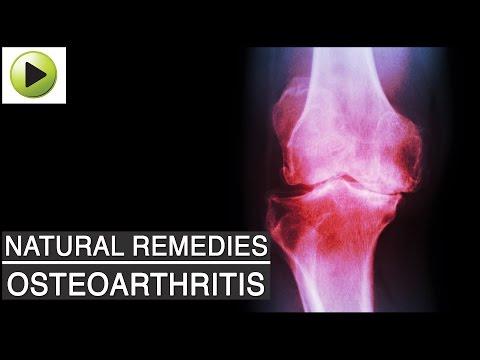 a jobb térdízület kórtörténetének osteoarthritis)