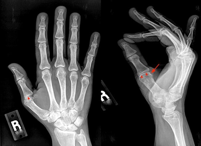 rheumatoid arthritis radiology mri