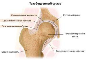 a csípőízület deformáló artrózisának kezdeti megnyilvánulásai térd deformációs ízületi gyulladása