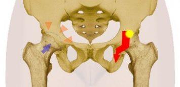 csípőízületi modern kezelés)