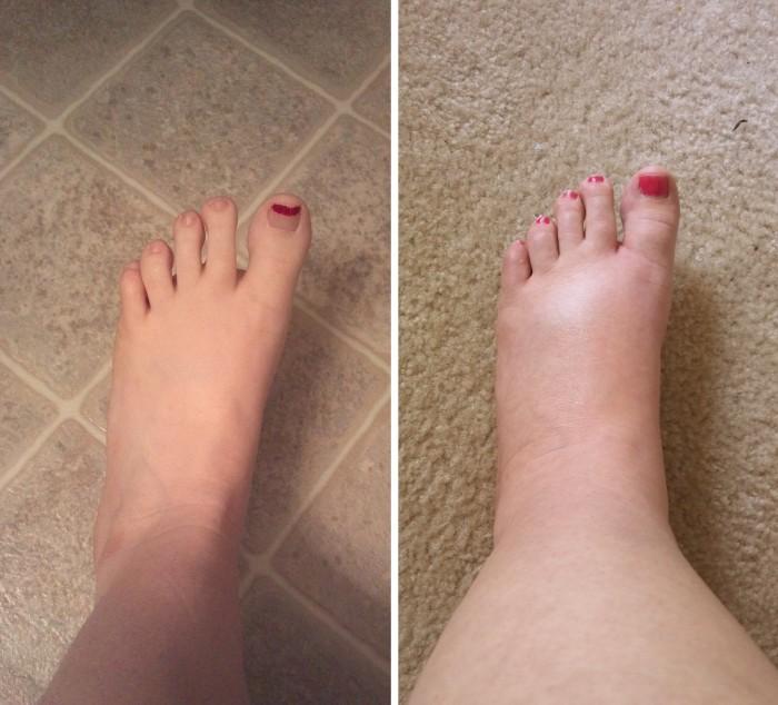 a jobb láb boka duzzanata
