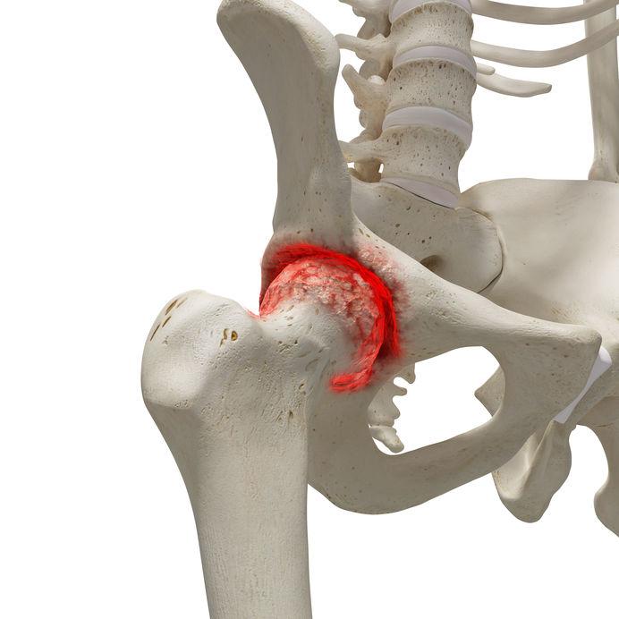 hogyan lehet kezelni az artrózis kezdeti stádiumát)