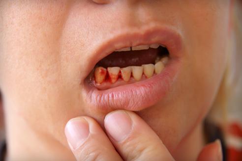 ízületi fájdalom a száj megnyitásakor artrózis váll kezelés torna