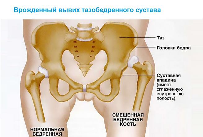 a csípőízületek fájnak, ha nyújtanak